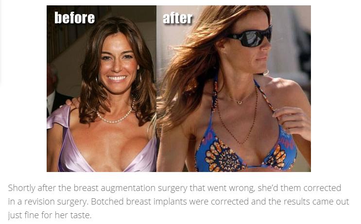 Celebrity Plastic Surgery Mishaps